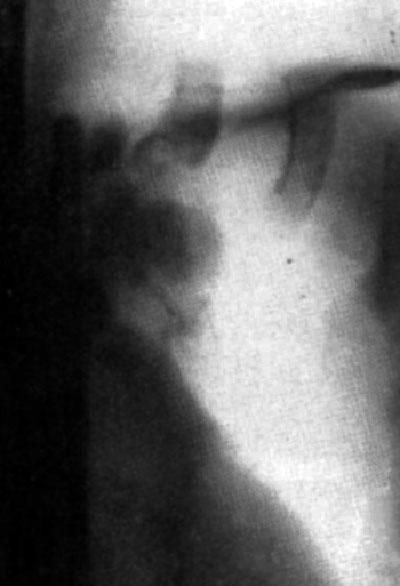 Болит сустав бедра при ходьбе лечение